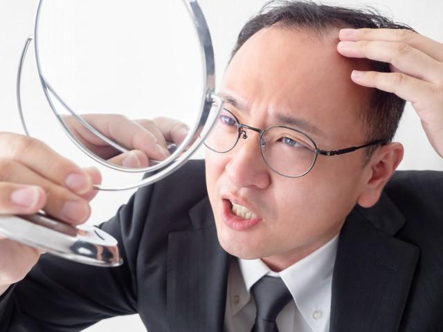 チャップアップシャンプーが合わない人とは?はげのタイプを解析、肌質が合う人は?